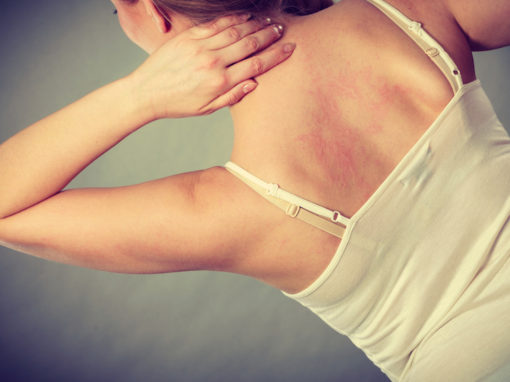 Is depletion of antioxidants responsible for the ozone sauna induced rash and is the rash a sign of the body being burned by oxygen??