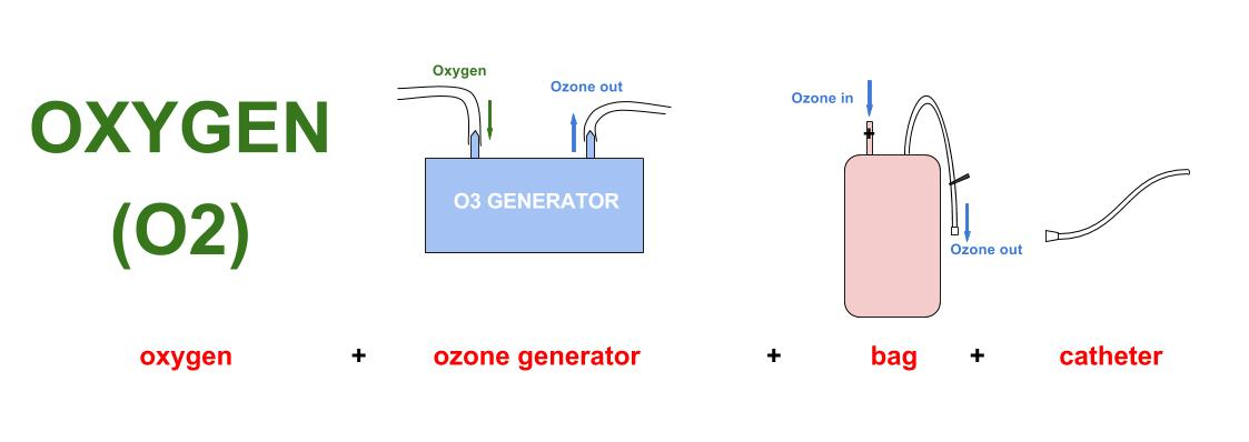 ozone rectal insufflations with bag diagram