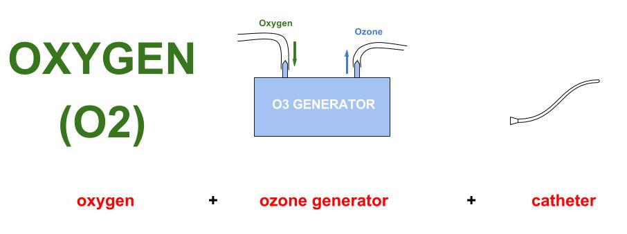 ozone rectal insufflations direct diagram