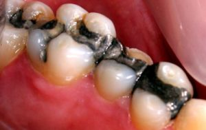 Amalgam fillings contain 50% mercury.